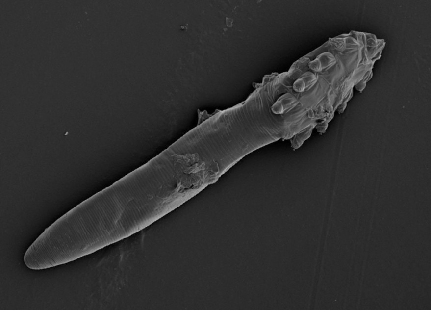 Demodex_Mites_2015.jpg